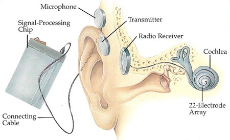 Cochlear Implant - Diagram