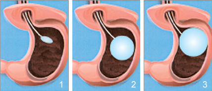 Bariatric-surgery-vs-balloon-alternative