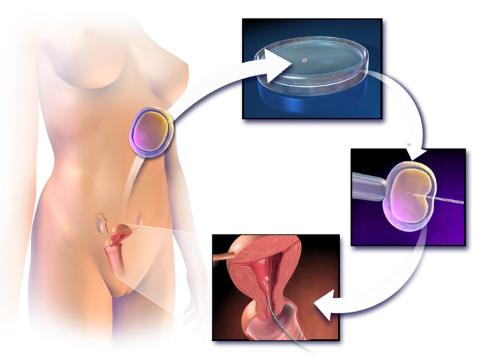 IVF - Assisted Reproductive Technology