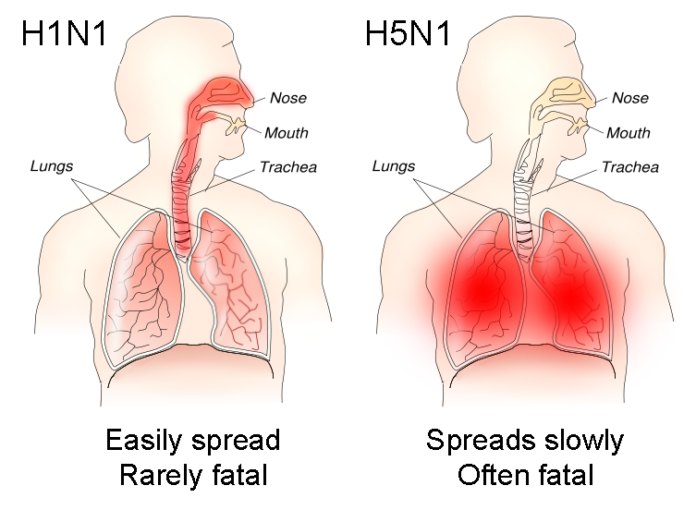 Bird Flu - H1N1 versus H5N1 pathology