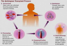 Autologous transplant procedure image